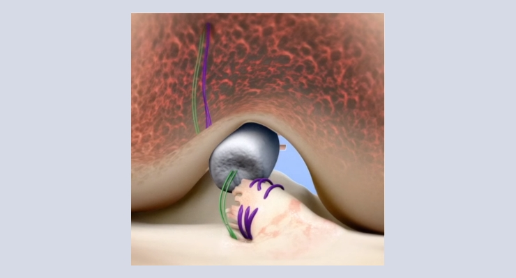 AAOS News: Miach Orthopaedics Reports Encouraging Results in ACL Repair Feasibility Study