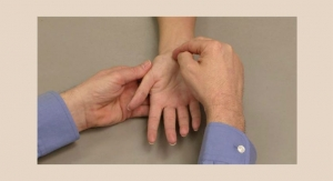 AAOS News: Gestational Carpal Tunnel Syndrome Found to be Persistent in Women After Pregnancy