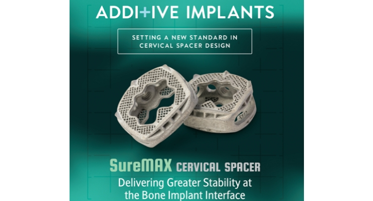 FDA Clears Additive Implants