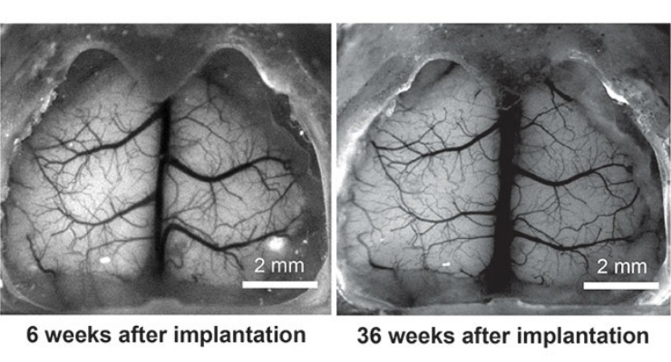 Images show the whole cortical surface of the mouse at six weeks and 36 weeks after implantation of the See-Shell. Researchers found that the See-Shell could be safely implanted over long durations of time, which opens up long-term options for brain research. Image courtesy of Ghanbari et. al., University of Minnesota.