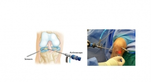 Meniscus Repair Systems Market Expected to Grow 8.7 Percent Through 2028