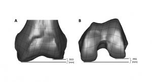 New Data Supports Use of Conformis Customized Knee Implants to Match Anatomic Variability