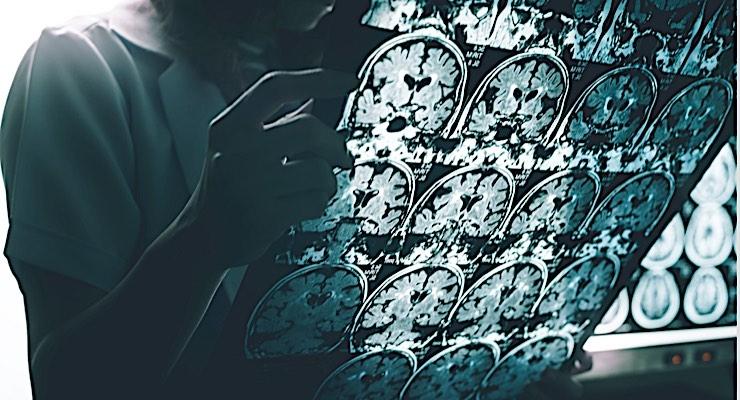 New Drug Development Strategies Needed for Alzheimer's Treatments