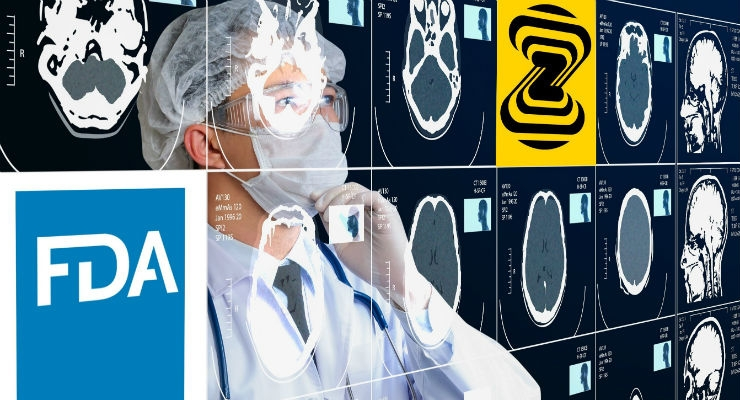 Zebra Medical Vision receives FDA clearance for world's first AI chest X-ray triage product.