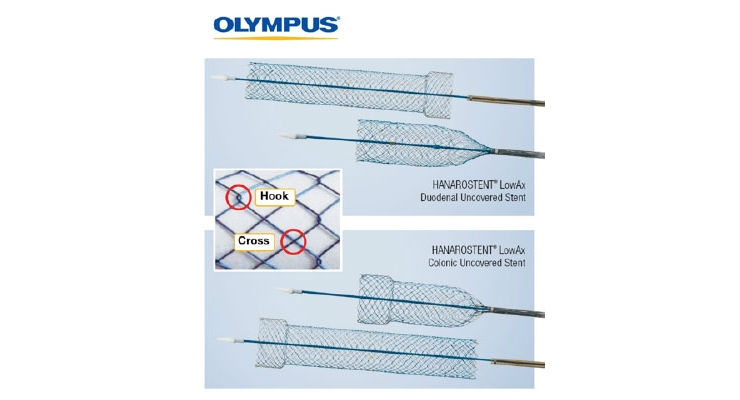 HANAROSTENT LowAx Colonic and Duodenal Uncovered Stents are 510(k) cleared devices made by M.I. Tech and now distributed exclusively through Olympus in the U.S. Both are used for the treatment of strictures to improve quality of life.