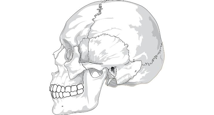 3D-Printed 'Hyperelastic Bone' May Help Generate New Bone for Skull Reconstruction