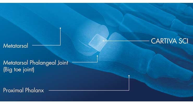 Placement of the Cartiva Synthetic Cartilage Implant (SCI). Image courtesy of Wright Medical Group N.V.