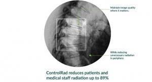 FDA OKs ControlRad