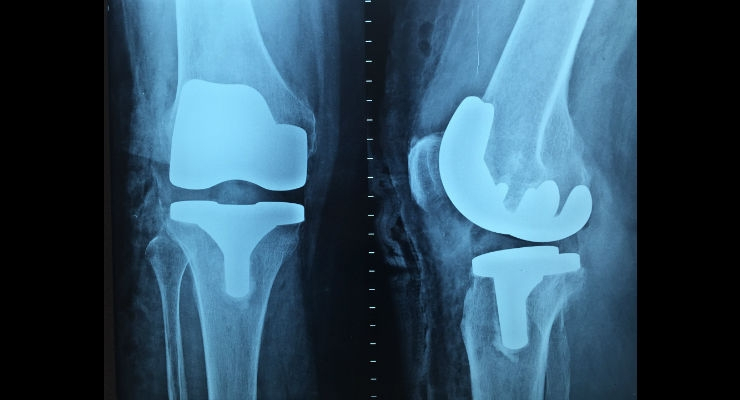 The Changing World Around Orthopedic Implants