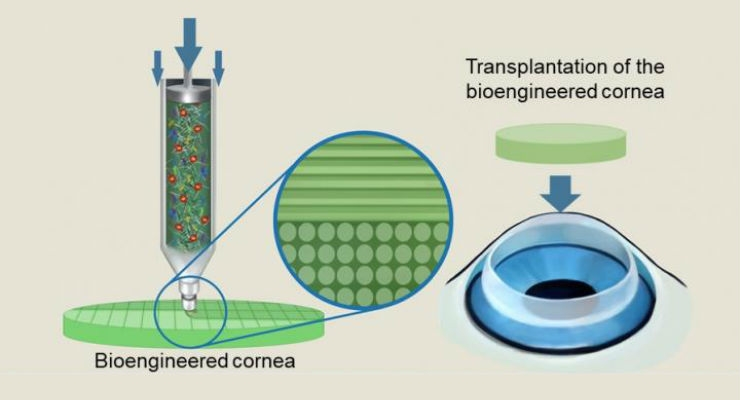3D Printed Artificial Corneas Prove Similar to Human Ones