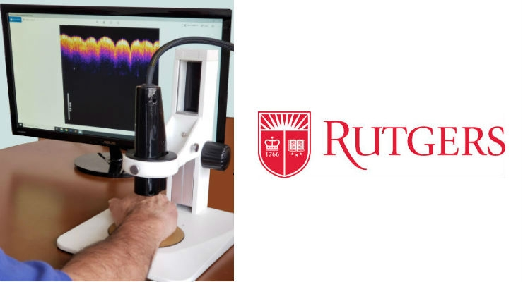 The virtual biopsy prototype device can distinguish between healthy skin and different types of skin lesions and carcinomas. Image courtesy of Rutgers University.