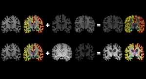 From One Brain Scan, More Info for Medical AI