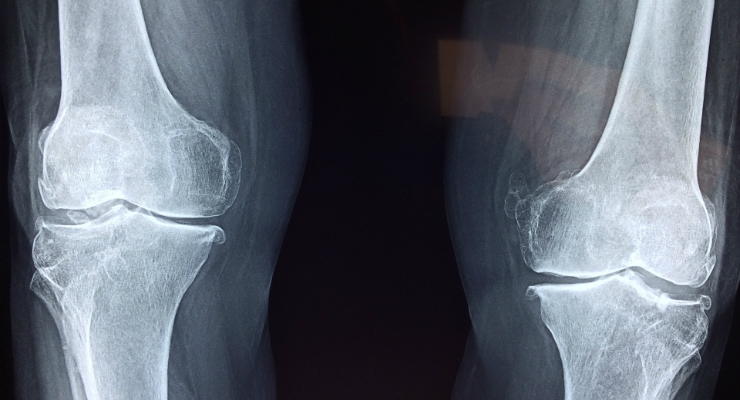 AOSSM News: Study Suggests Surgery a Better Option for Older Patients with Meniscus Tears