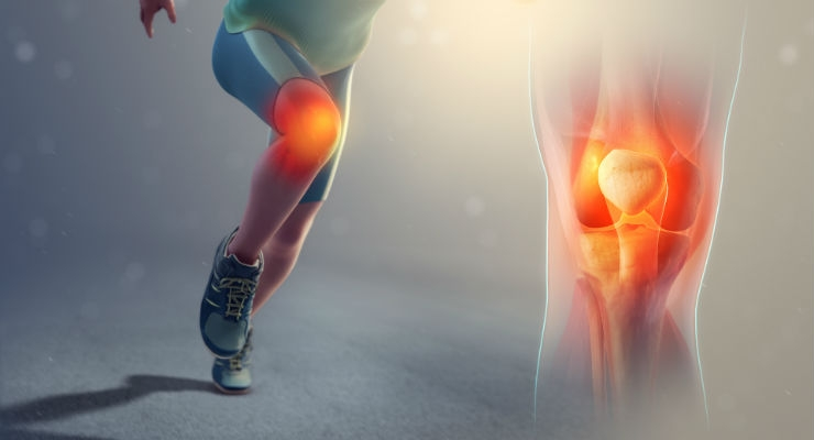 AOSSM News: Lower Quadricep Strength Identifies Limb at Increased Risk of Future ACL Injury