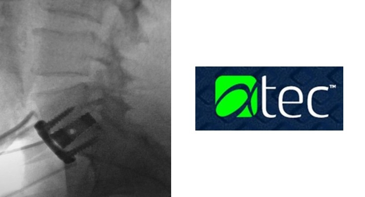 Radiographic intraoperative image. IdentiTi Implant Technology features reduced density (60 percent porous), which enhances intraoperative and postoperative imaging. Image courtesy of Alphatec.