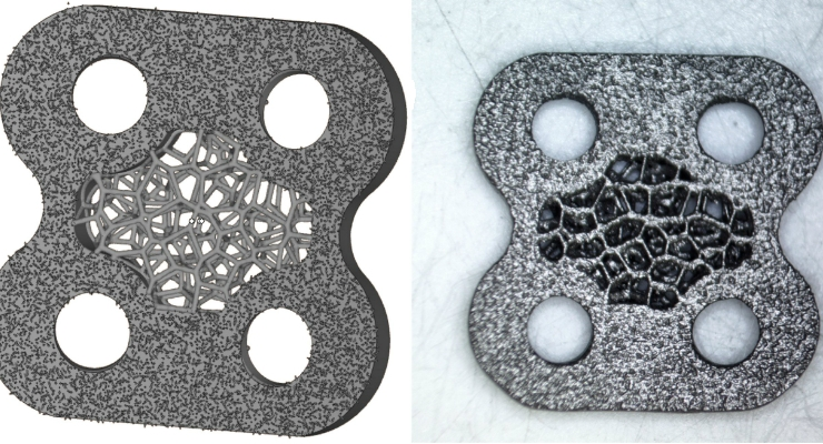 Intentional Design Of Surface Roughness For Orthopedic Parts