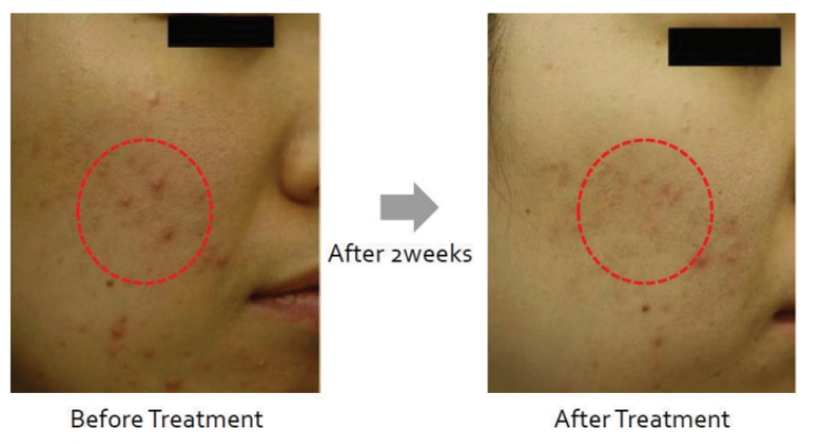 A volunteer applied a serum containing 4% BP―SA Niacinamide Salicylate Complex on her acne lesions twice a day for 2 weeks. An improvement of the appearance of the lesions was observed. Image courtesy of BotanicalsPlus.
