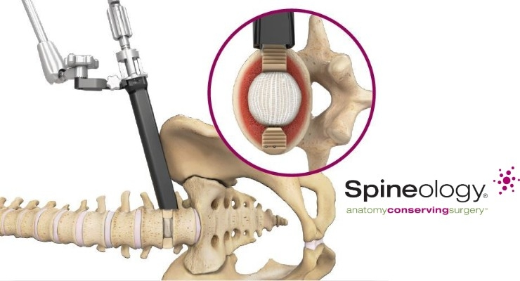 Duo Angled Instrumentation System. The angled instrumentation supplements the Duo Lumbar Interbody Fusion System. Graphic courtesy of Spineology Inc.