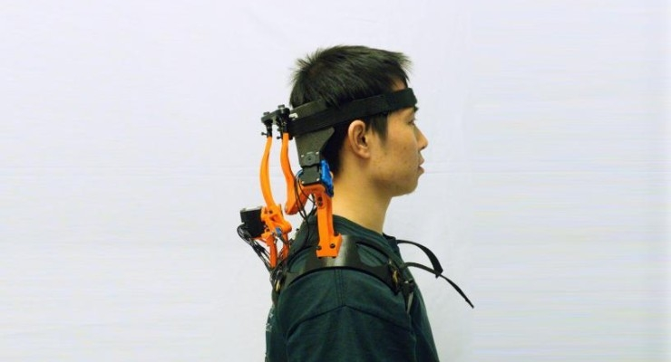 Robotic Neck Brace Dramatically Improves Functions of ALS Patients