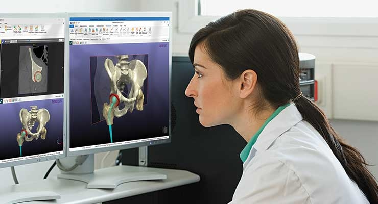 A Simpleware software user studying placement of an implant in human anatomy. Image courtesy of Synopsys Simpleware Product Group.