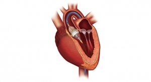 Sapien 3 TAVR Receives FDA Approval for Low-Risk Patients