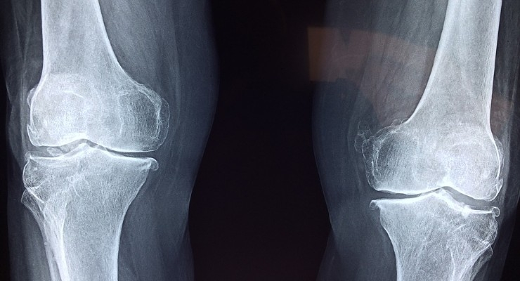 Clay-Enhanced Hydrogels Could Treat Bone Defects