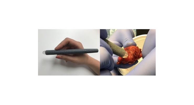 'MasSpec Pen' for Accurate Cancer Detection During Surgery