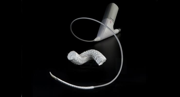 First U.S. Patient Receives GORE TAG Conformable Thoracic Stent Graft with ACTIVE CONTROL