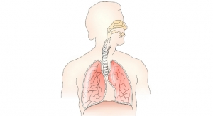 Owlstone Makes Advancements in Breath Biopsy Platform