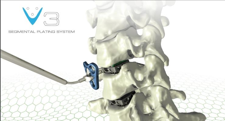 Atlas Spine Receives 510K Clearance for Cervical Plating System