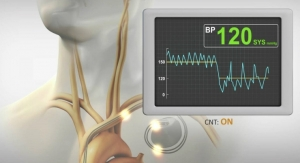 Trial Shows that BackBeat CNT Can Reduce Systolic Blood Pressure