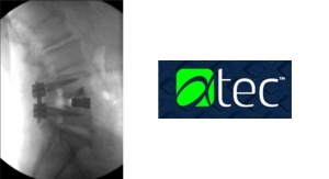Alphatec Launches IdentiTi Implants for Lateral Interbody Fusion