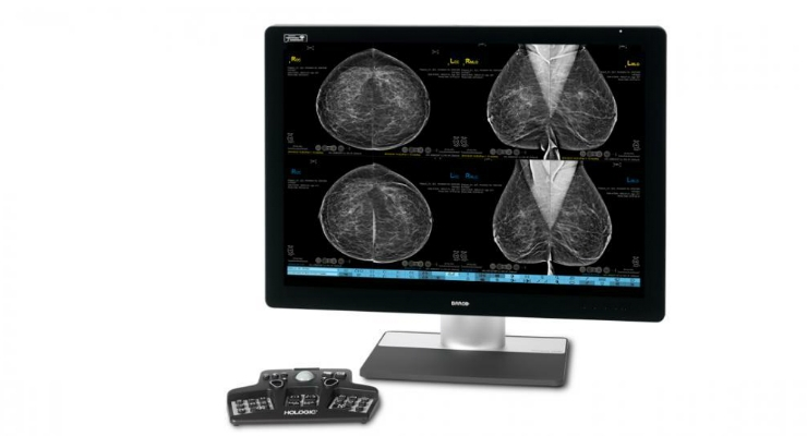 FDA Approves 3DQuorum Imaging Technology