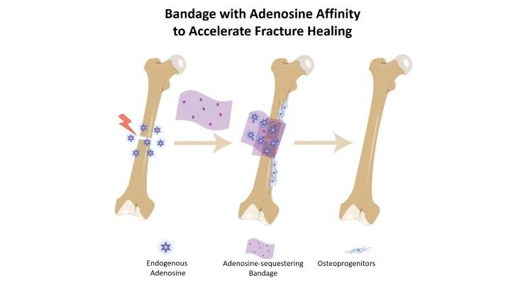 Bandage Absorbs Pro-Healing Biochemical to Accelerate Bone Repair