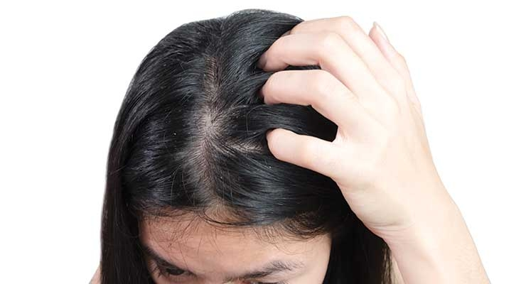 The Microbiome's Role in Common Hair Issues