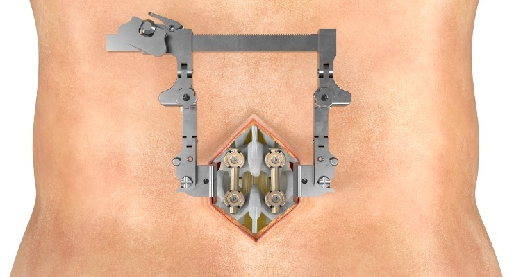 SeaSpine Launches Mariner Midline Posterior Fixation System