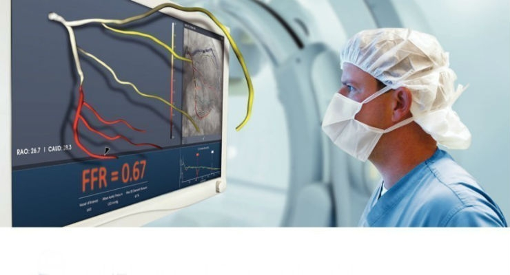 Japanese Regulators Approve Non-Invasive Angiography Technology