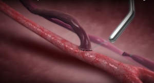 Enrollment Complete in Trial of Arteriovenous Fistula Support Device