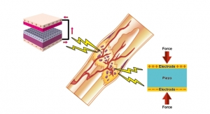 Can Natural Electricity in Bones Promote Regeneration?
