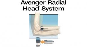 In2Bones Launches Avenger Radial Head in U.S.