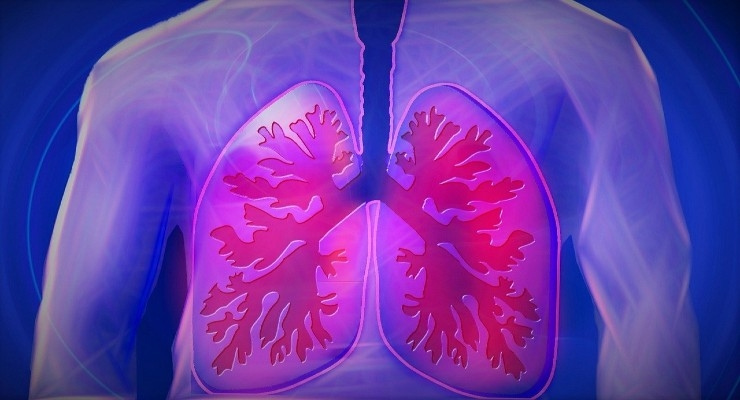 FDA Clears Paragonix Technologies' LUNGguard for Donor Lung Preservation