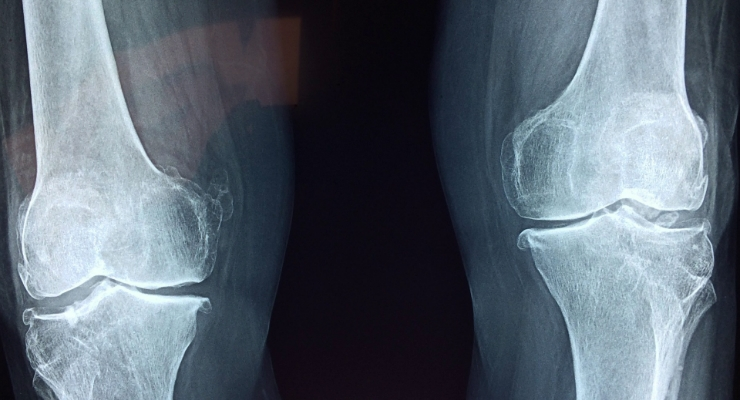 The Appealing Benefits of Anatomic Joint Preservation Arthroplasty