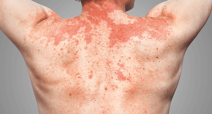 Allergy, Inflammation or Irritation?
