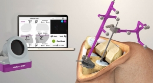Intellijoint Surgical Launches New Smart Navigation for Total Knee Replacements