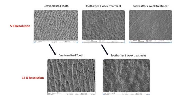 Tooth Remineralization & Biomimetics