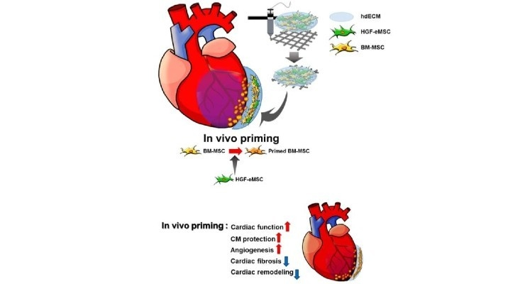 Cardiac Patch with Bioink Could Repair the Heart