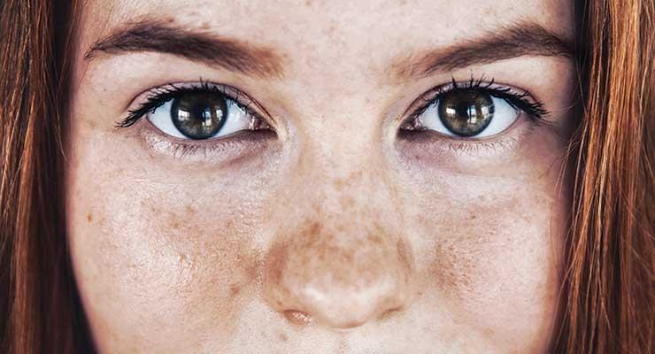 CBD in Skin Care
