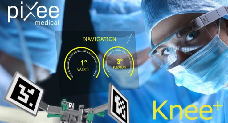 Vuzix Announces Orthopedic Navigation System Using Augmented Reality Smart Glasses
