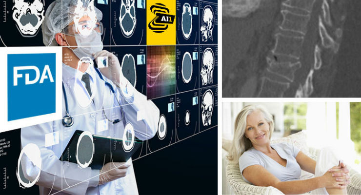 FDA Clears Zebra Medical