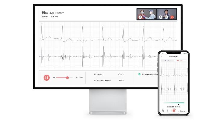 Eko Launches First AI Telehealth Platform for Virtual Pulmonary and Cardiac Exams